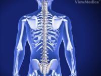 Arthrodesis/Spinal Fusion